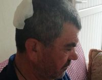 Taş ocağındaki patlamadan savrulan taş parçaları zeytin toplayan altı kişiyi yaraladı